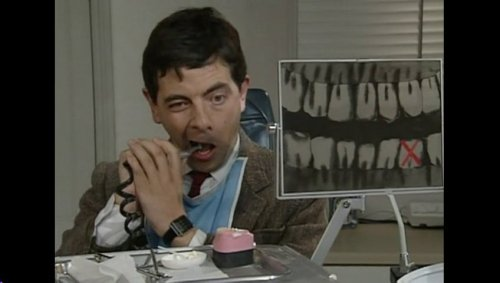 eGZmNjd1MTI=_o_mr-bean---fixing-his-own-teeth