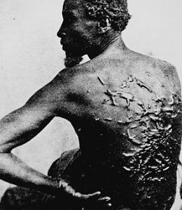 slave-back